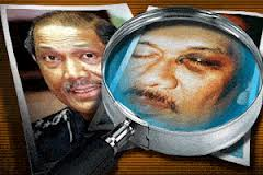 Anwar's black eye and Rahim Noor (L) was jailed for it.